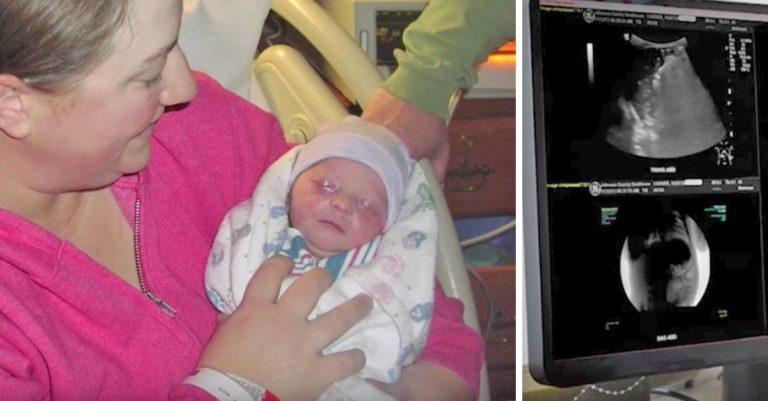 Legene fant stor cyste i babys mage – Like før operasjonen blir mor informert om at cysten er borte!