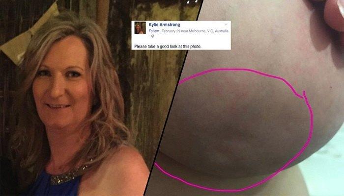 Hun la ut et bilde av brystet sitt – for å vise hvor vanskelig kreft er å oppdage.