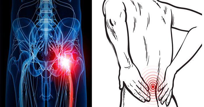 3 enkle metoder for å dempe ryggsmerter og isjias, uten piller eller kirurgi!