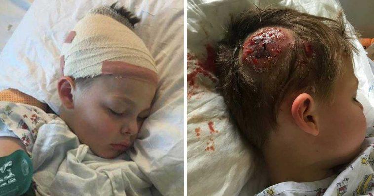 Gutt (7) ble mobbet og utsatt for fysisk vold – bildene ryster hele verden