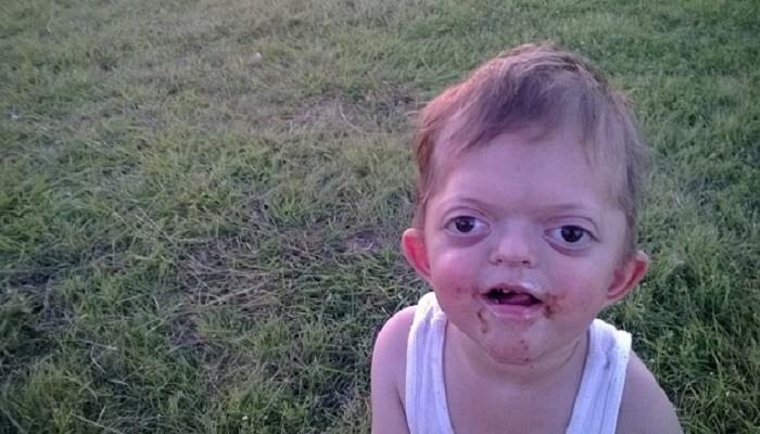 Han er ikke skummel – han er et barn. Mor ber foreldre om å endre innfallsvinkel ovenfor barn som er annerledes